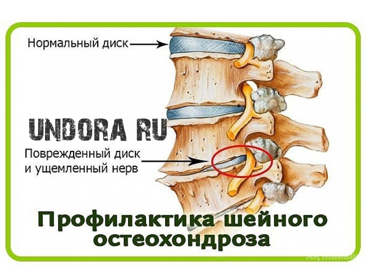Остеохондроз грудного отдела позвоночника схема лечения
